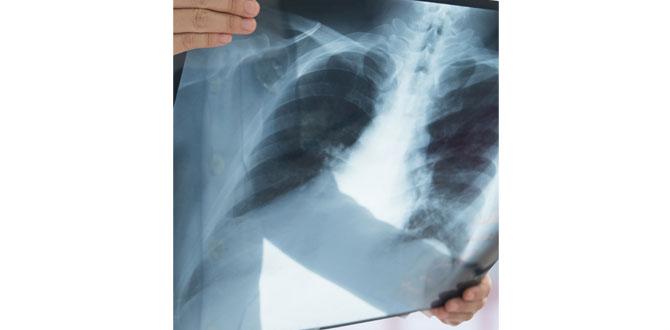 Akciğer kanseri hakkında doğru zannettiğimiz yanlışlar…