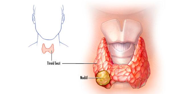 5 soruda tiroid nodülü…